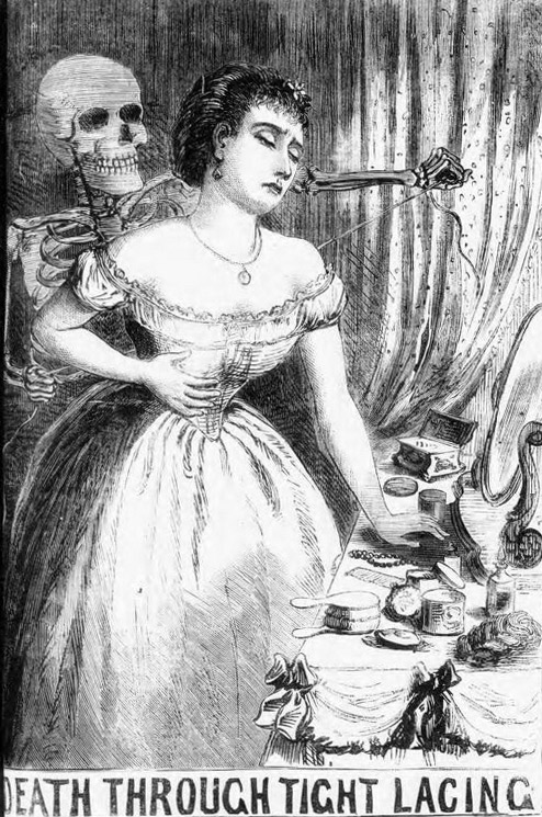The Illustrated Police News reported that a woman had been killed by her corset in 1870.