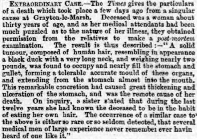 The Liverpool Daily Post reported that a woman had died from eating her own hair in 1869
